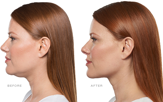 Kybella, Double Chin Treatment